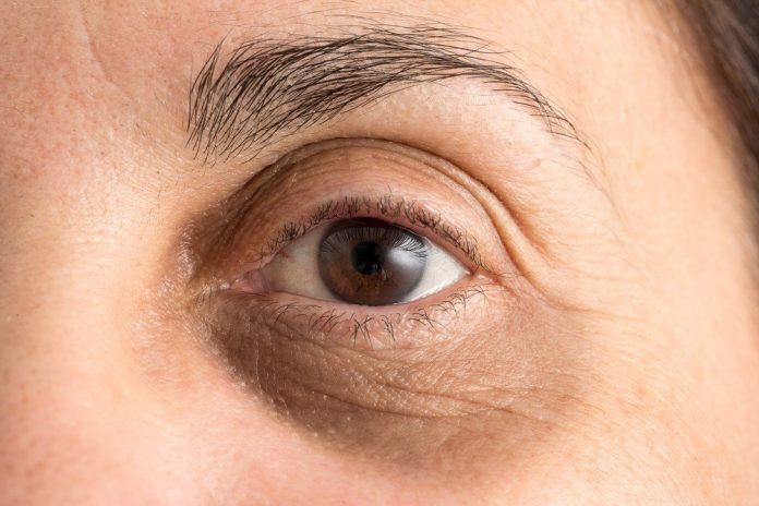 So Werden Sie Augenringe Los Falten Unter Den Augen Dunkle Ringe Unter Den Augen Augenringe