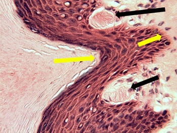 Stratified Squamous Epithelium Meissener's corpuscles are located at the black arrow tips. These sensory organs are located in the papillary layer of the dermis and detect light pressure. The shorter yellow arrow is pointing toward the stratum basale. The longer yellow arrow is pointing toward the stratum lucidum.