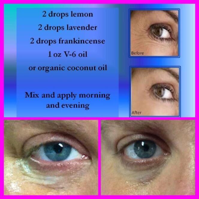 Essential oils eye cream!