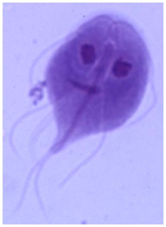 Giardia lamblia - this is why you do NOT drink from creeks, lakes, etc!! Can you say bloody stools and severe abdominal cramping?