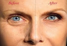 Are you worried about the eye wrinkles?  Now you don't have to worry anymore. We provide you the best anti wrinkle eye cream .By using this cream, you will look younger.http://bit.ly/1p9DkcK