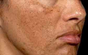 Cómo eliminar las manchas del sol en la cara. Conoce dos recetas caseras que te ayudarán a quitarte las manchas producidas por los rayos solares.