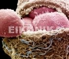 Human embryo exposing the embryonic cells (blastormeres)