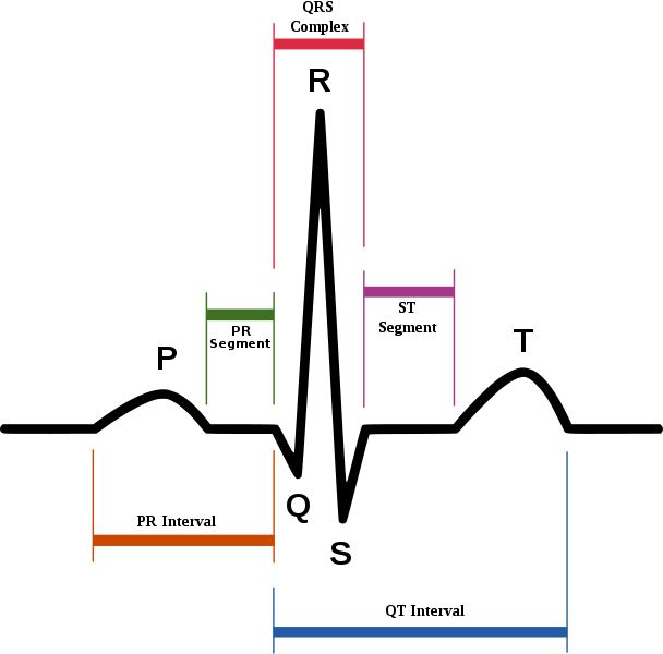 How To Read An EKG (electrocardiograph) | Emt | Pinterest | Medical, Medical assistant and Cardiology