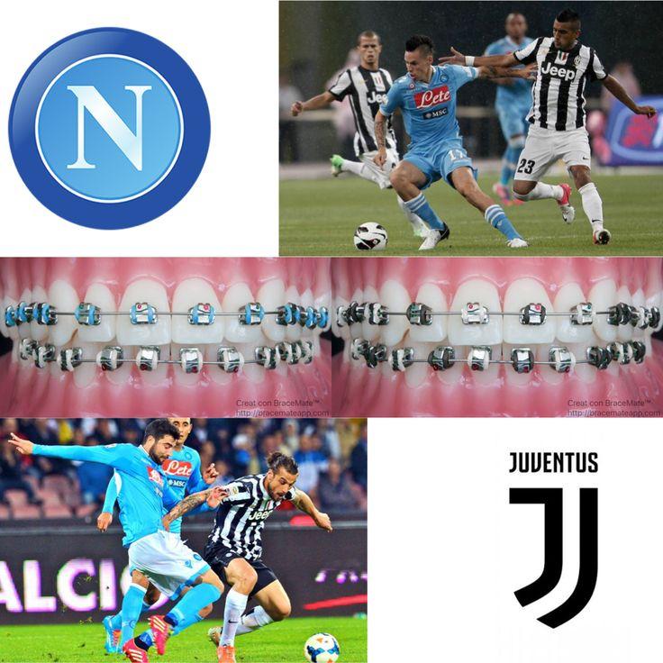 #SSCNapoli vs #Juventus #Napoli #napoli❤️ #juventusfc #juve #serieA #coppaitalia #calcio  #ortodonzia #ortodontista #dentale #dentista #odontoiatria  #football #braces #orthodontics #orthodontist #dental #dentist #dentistry #italy #italian #italia  #turin #piedmont #naples #campania