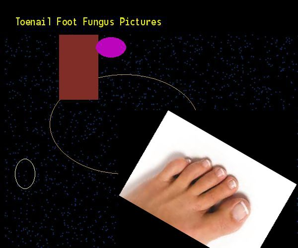 Toenail foot fungus pictures - Nail Fungus Remedy. You have nothing to lose! Visit Site Now