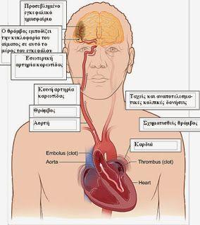 ΑΓΆΠΗ ΓΙΑ ΖΩH: Εγκεφαλικό Επεισόδιο