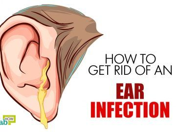 Get rid of ear infection with home remedies life pinterest get rid of ear infection with home remedies life pinterest medicine home and natural ccuart Images