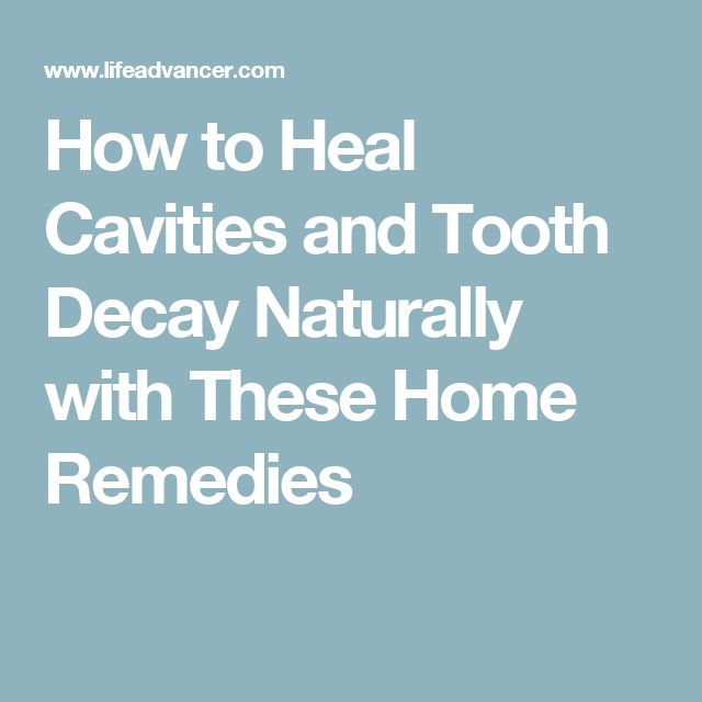 1000 ideas about heal cavities on cavities