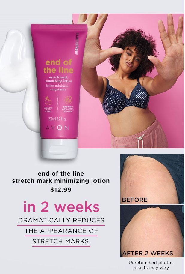 Pin By Angelina Avon On Avon With Images Best Stretch Mark