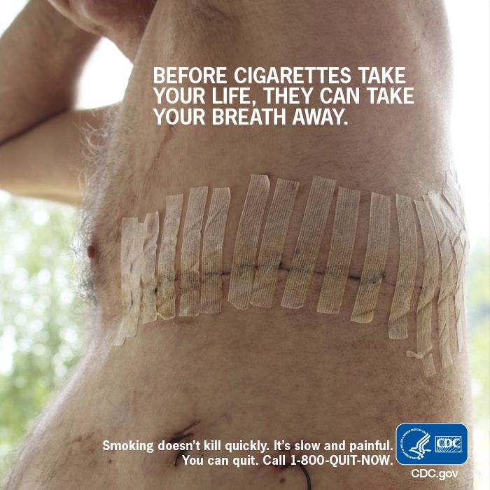 Battle scars from smoking addiction - Nobody wants them. Quit smoking now before it's too late. Call 1-800-QUIT-NOW.