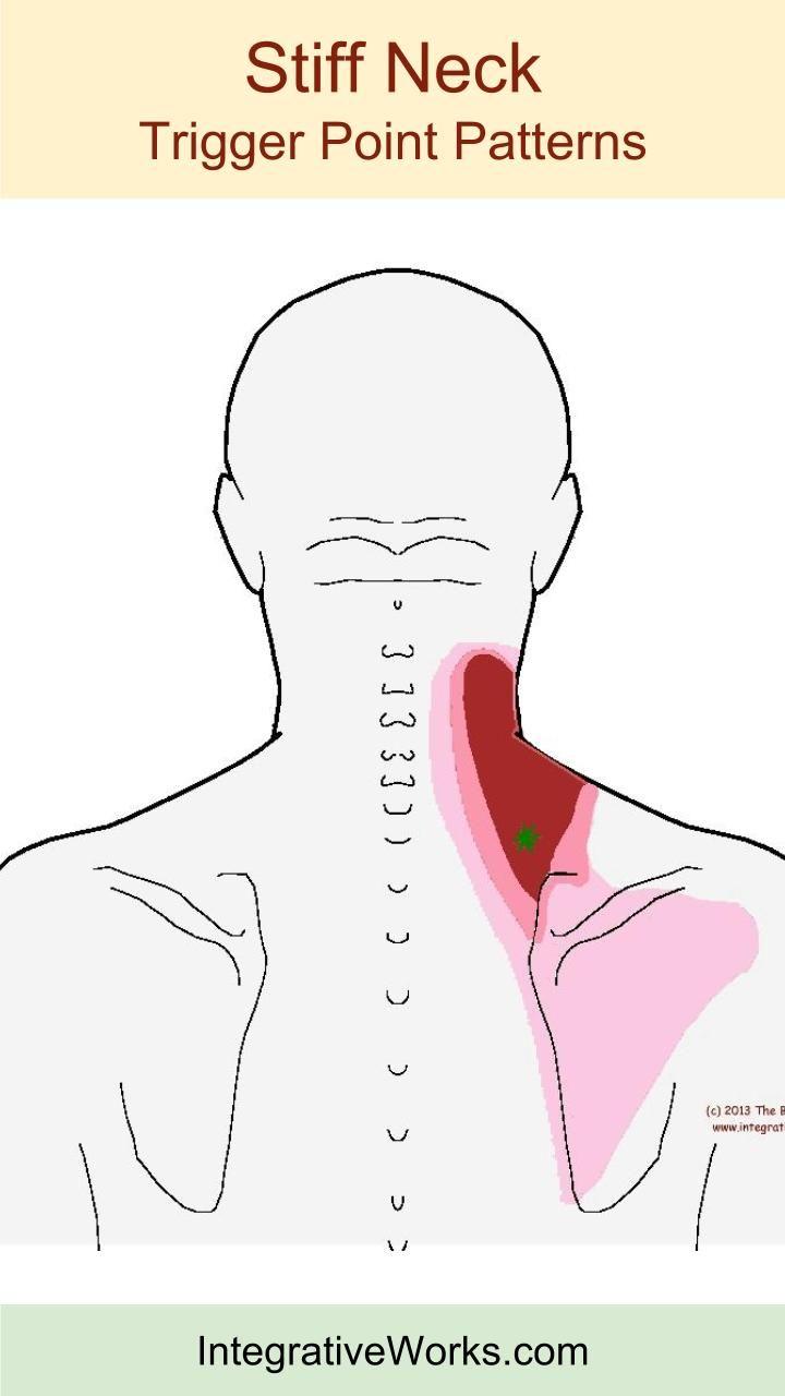 Best 25+ Stiff neck ideas on Pinterest | Stiff neck relief ...