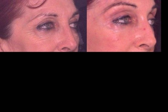 This image is example of the Before & After #Brow / Forehead Lift  #Surgery _ Performed by - Dr R Sadove. http://sadoveplasticsurgery.com/