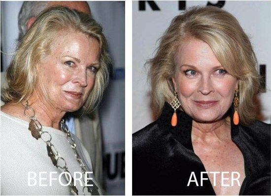 Celebrity Candice Bergen Before And After Plastic Surgery