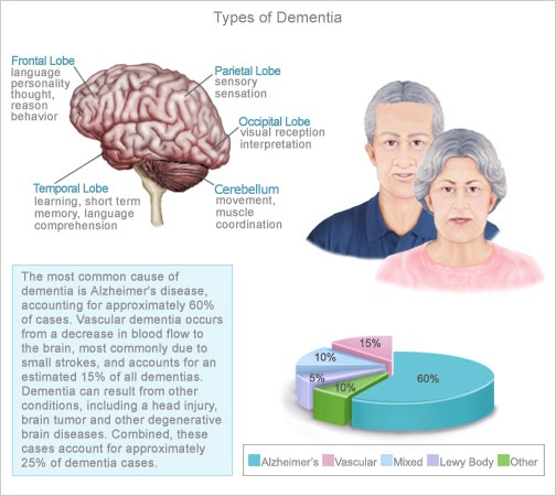Primary causes of dementia include a number of neurological disorders, from the well-known Alzheimer's disease to less familiar disorders, such as Pick's disease. Primary causes of dementia usually cause irreversible memory loss and impaired thought processing
