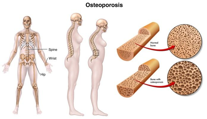 28++ Osteoporosis how does it affect the body viral