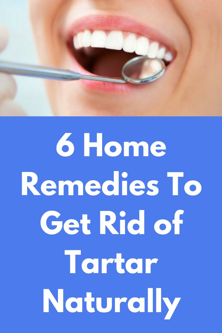 6 home remedies to get rid of tartar naturally tartar