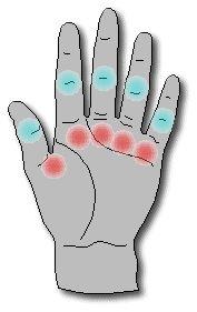 Flexor Tendinitis / Trigger Finger