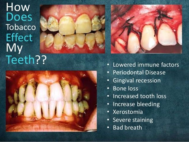 19++ Does osteoporosis affect your teeth ideas in 2021