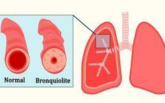 Bronquiolite – O que é, Causas, Sintomas e Tratamentos