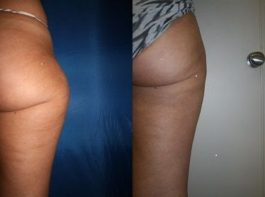 Laser Lipo vs VASER Lipo  Lots of patients ask us the differences between VASER Lipo and Laser Lipo so we've put together a blog post about the differences.  #vaserliposuction vs. #laserliposuction debate available here: http://www.theprivateclinic.co.uk/blog/2013/10/08/vaser-lipo-vs-laser-lipo  Find out more about VASER Lipo at The Private Clinic of #HarleyStreet: http://www.theprivateclinic.co.uk/treatments/lipo-body-contouring/vaser-liposuction