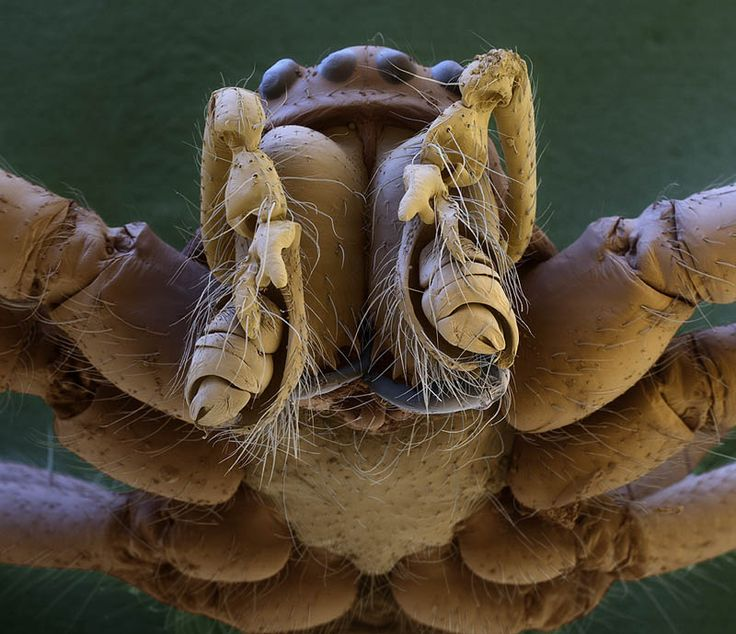 Incredible Examples of Electron Microscope Photography
