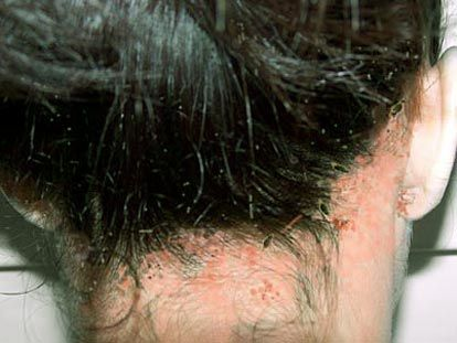 17 Best Images About Lice On Pinterest Drug Store