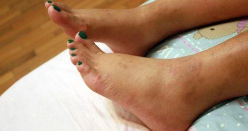 Vous souffrez d'une inflammation des chevilles ? Venez découvrir dans notre article comment prendre soin de vos chevilles de manière naturelle !