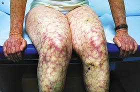 Antiphospholipid Syndrome. Livedo reticularis bluish-purple streaks in a net-like pattern  Antiphospholipids Syndrome (APLS) in SLE patient presented with CLOT  coangulation defect livedo reticularis obstetric complication - recurrent miscarriage & IUGR thrombocytopenia  So we do : 1. ELISA for anticardiolipin & lupus anticoangulant 2. activated Prothrombin Time DRVVT.  High titer of IgG Anticardiolipin suggests high risk for clotting.