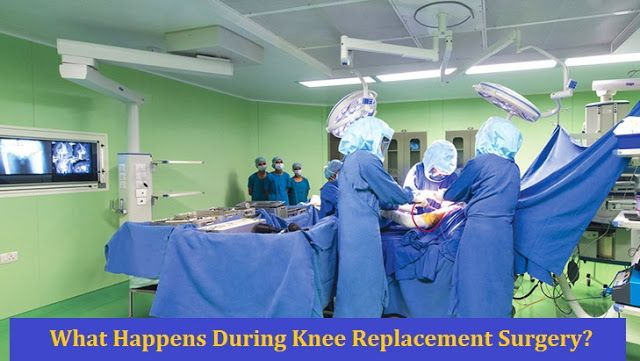Knee Replacement Surgery Cost in India: Relieve Your Pain