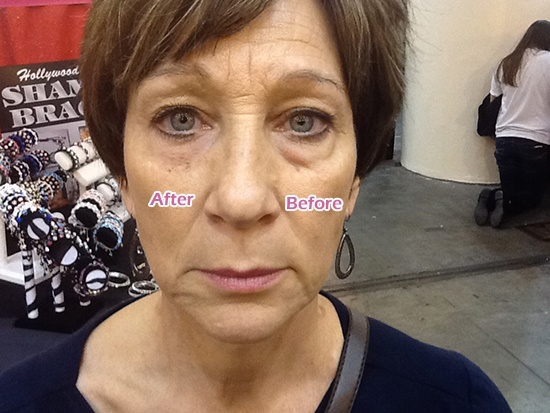 Dramatic Results! OMG by InstantlyAgeless.com