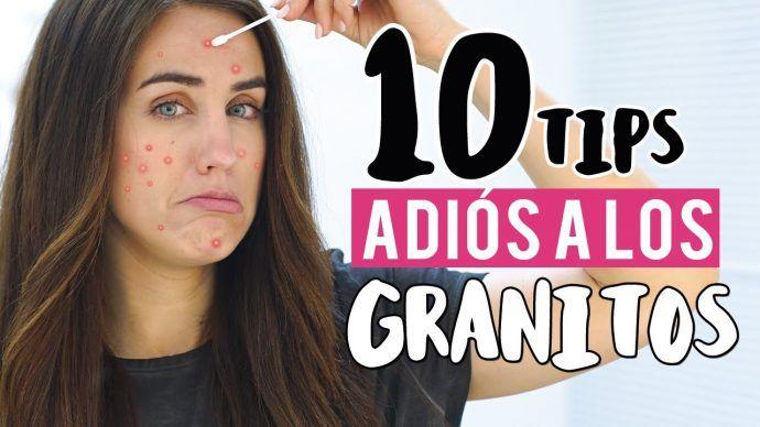 6-trucos-infalibles-para-deshacerse-de-los-granos-y-el-acne