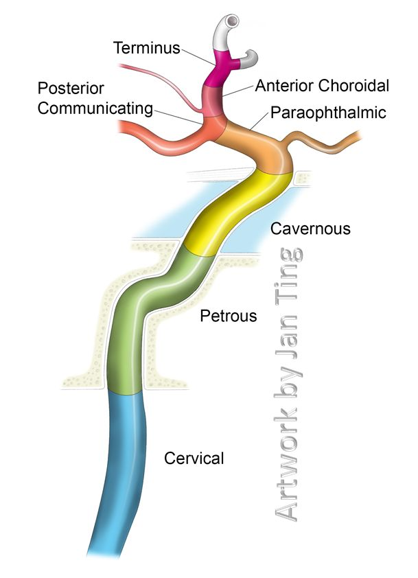 Internal Carotid Artery NYU Classification