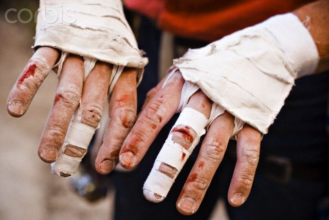 A close up of a rock climbers bloody, worn down fingers after climbing a crack in Joshua Tree, CA. Ouch.