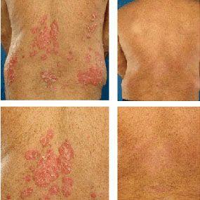 Psoriatic Arthritis Diagnosed
