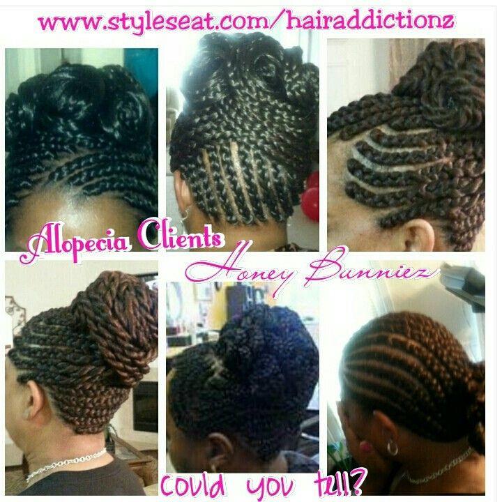 Alopecia Hairstyles 50 Hair Loss African American