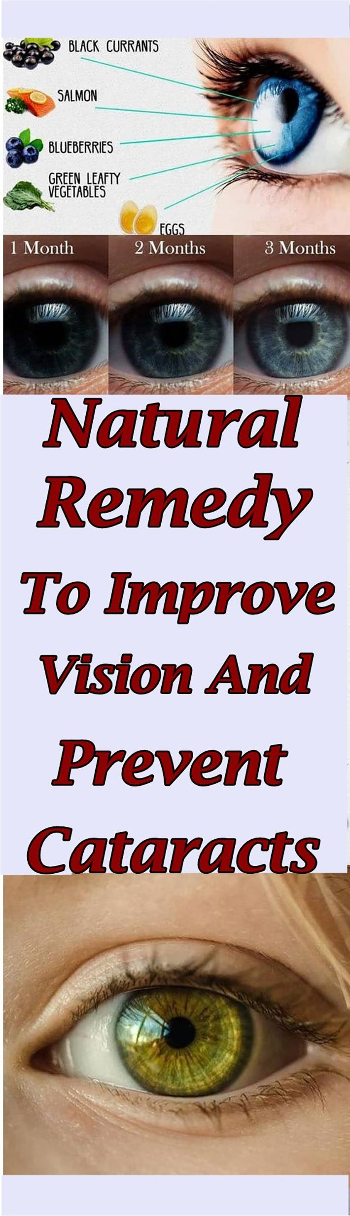 Natural Remedy To Improve Vision And Prevent Cataracts #health #eyes #cataractsLori Forker
