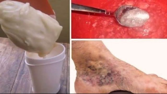 Las varices son venas inflamadas que sobresalen de la superficie de la piel por causa de la acumulación de sangre coagulada, las válvulas...