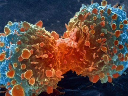 Un traitement d'avant-garde du cancer semble être la raison pour laquelle une poignée de médecins holistiques ont été récemment découverts « suicidés »: ce traitement est en train de gagner l'attention du monde en tant que potentiel remède universel au ...