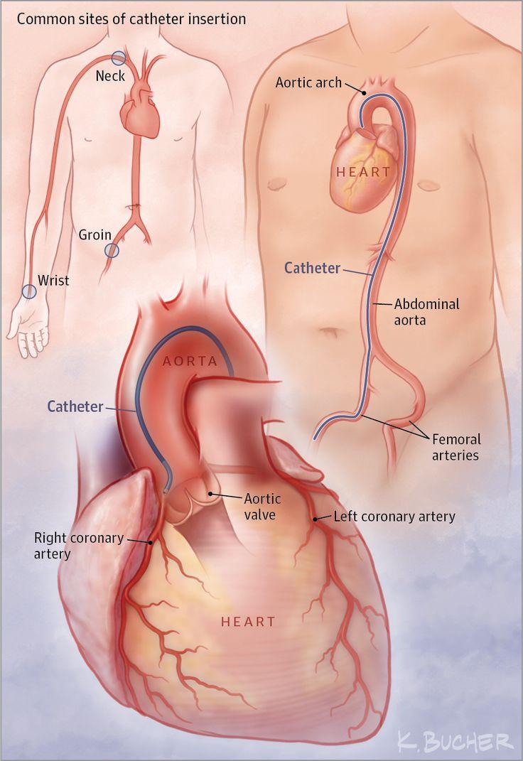 479 best internal med images on Pinterest | Nurses, Nursing and ...