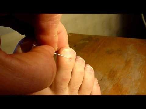 Natural Cures For Dyshidrotic Dermatitis