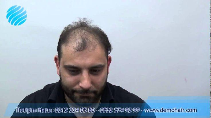 Muarrem meriç Almanyada yaşıyorum bayan kuaförü 4yil önce iki defa saç ekimi yaptırdım. Ekim yaptırdığım firmanın ismini vermek isterdim, ama onları Allah a havale adiyorum.#almanyaprotezsac #sacprotezialmanya #sacalmanya #protezsacalmanya #saçprotezfiyatları  Hipokrat yemini eden doktorlarımız 1000-2000 euro için türlü yalan söylediler., Saçın 6ay da çıkar dediler çıktı çıkmsına fakat yapma bebeklerin saç dipleri gibi ve bir kökten tam 2-3 saç teli çıkıyor. ve hala saçsız