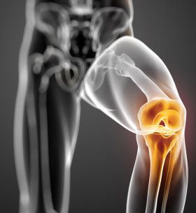 Find out what a meniscus tear is and what the best knee brace for meniscus tear is. Visit us for information on knee pain management and the best knee braces around. https://redd.it/46e8e2