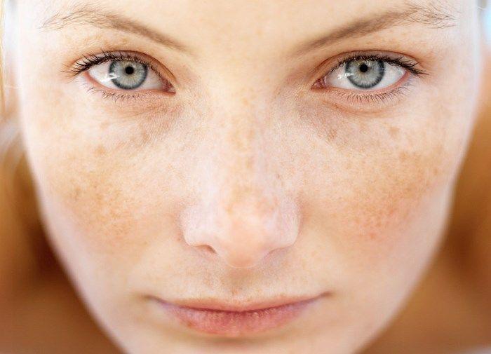 Эффективное осветление кожи: способы устранения пигментных пятен под глазами