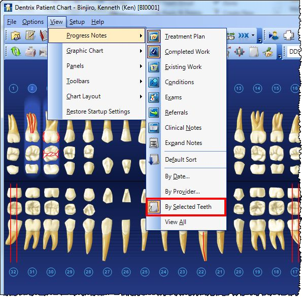 Best Clinical Charting Images On   Dental Medical