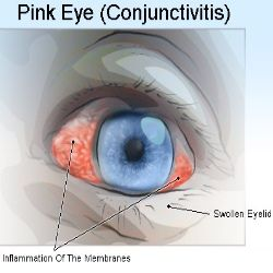 Effective Natural Remedies For Pink Eye