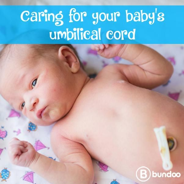 Recommendations on caring for your newborn's umbilical stump have changed. See how.
