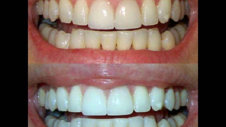 Отбеливание зубов в домашних условиях: результаты.