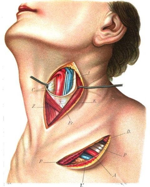 External carotid artery showing the location of ligation of the superior thyroid artery. From 'Atlas and epitome of operative anatomy' by Emil Zuckerkandl ~~ www.facebook.com/TheIrregularAnatomist ~~ www.twitter.com/Irr_Anatomist