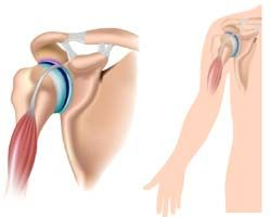 Acromioclavicular Joint Pain Treatments